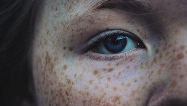 Collagena Lumiskin per iperpigmentazione