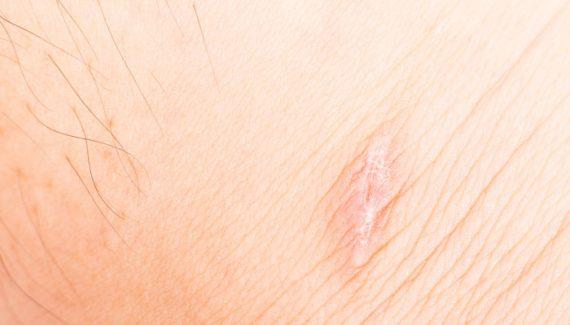 crema per cicatrici Dermopillina
